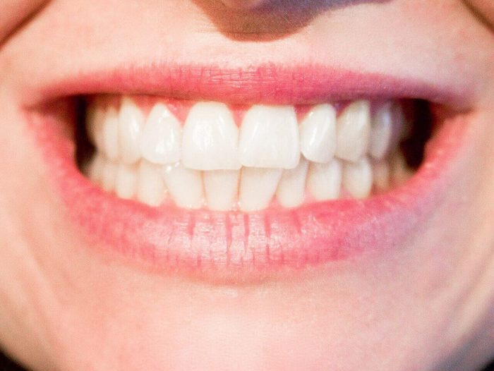 3 Ways to Stop Grinding Teeth
