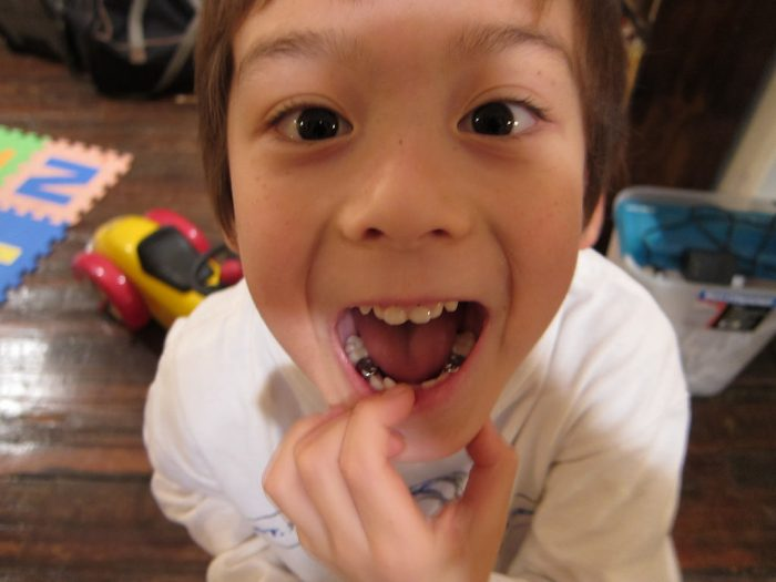 Causes of Teeth to Fall Out