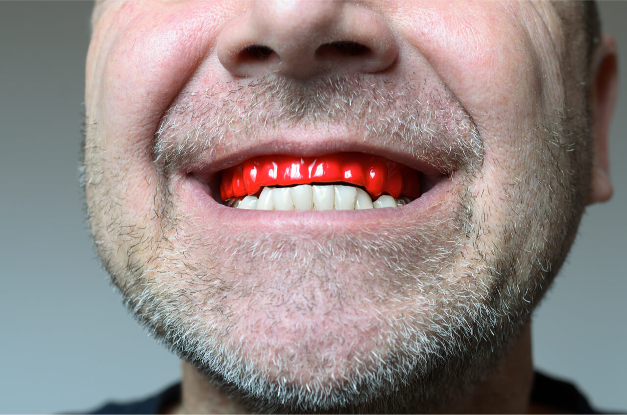 man wearing red mouthguard for teeth grinding