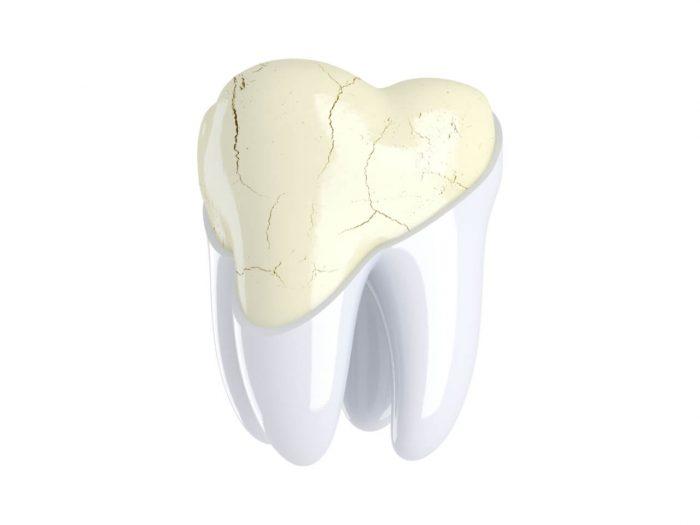 Stress Lines in Teeth