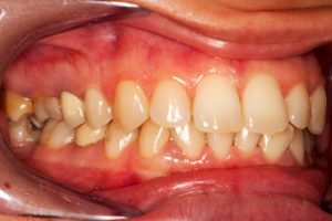 stress and teeth
