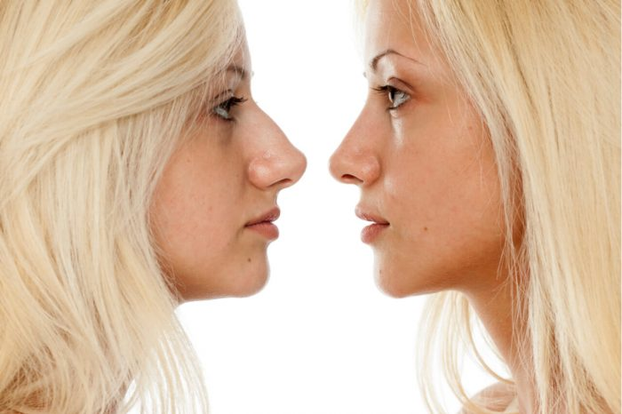 Importance of Best Rhinoplasty Recovery Clinic.