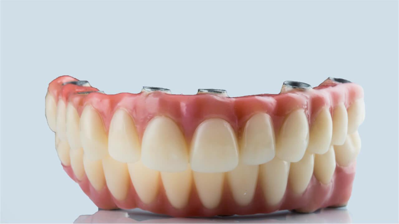 dentures vs implants pros & cons