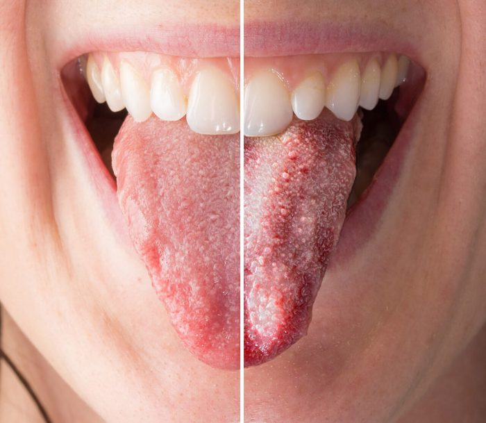 Oral Thrush Stress: A Patient's Nightmare