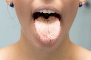 oral thrush stress