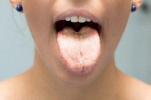 oral thrush stress