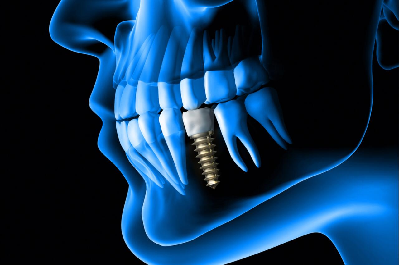 dental implants procedure pain